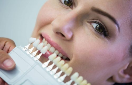Dentist examining female patient with teeth shades at dental clinic